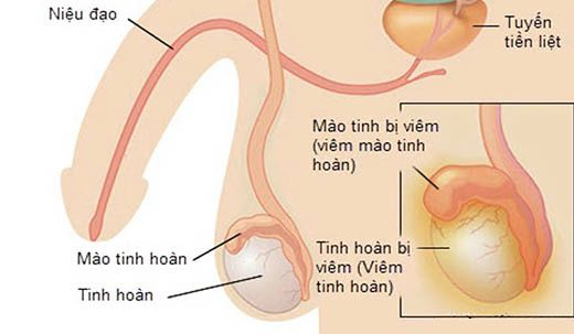 tai-sao-phai-kham-tinh-hoan