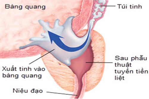 xuat-tinh-nguoc-dong-la-gi