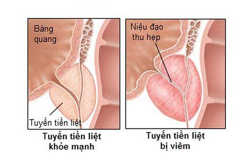 điều trị viêm tuyến tiền liệt